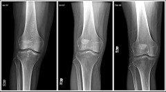 Alternative Options For Luxating Patella